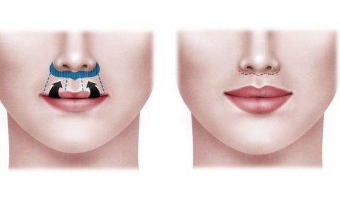 cirugía del labio lip lift